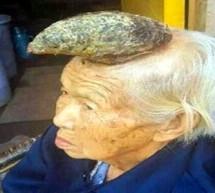 غريب …عجوز صينية تملك قرنا كبيرا فوق رأسها